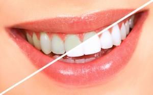 Envie d'un sourire éclatant ? Notre soin blanchiment dentaire vous permet de gagner de 3 à 7 teintes...